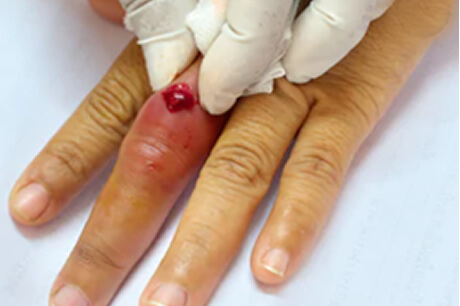 Incision and drainage